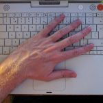 Computing And Repetitive Strain Injury